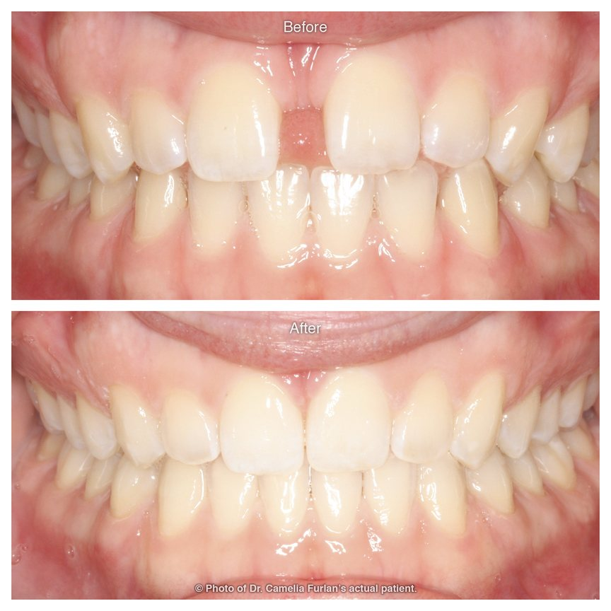 Cosmetic dentist gap in teeth