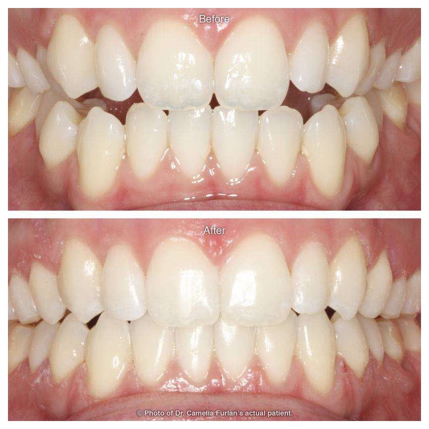 Cosmetic smile makeover for nice looking teeth