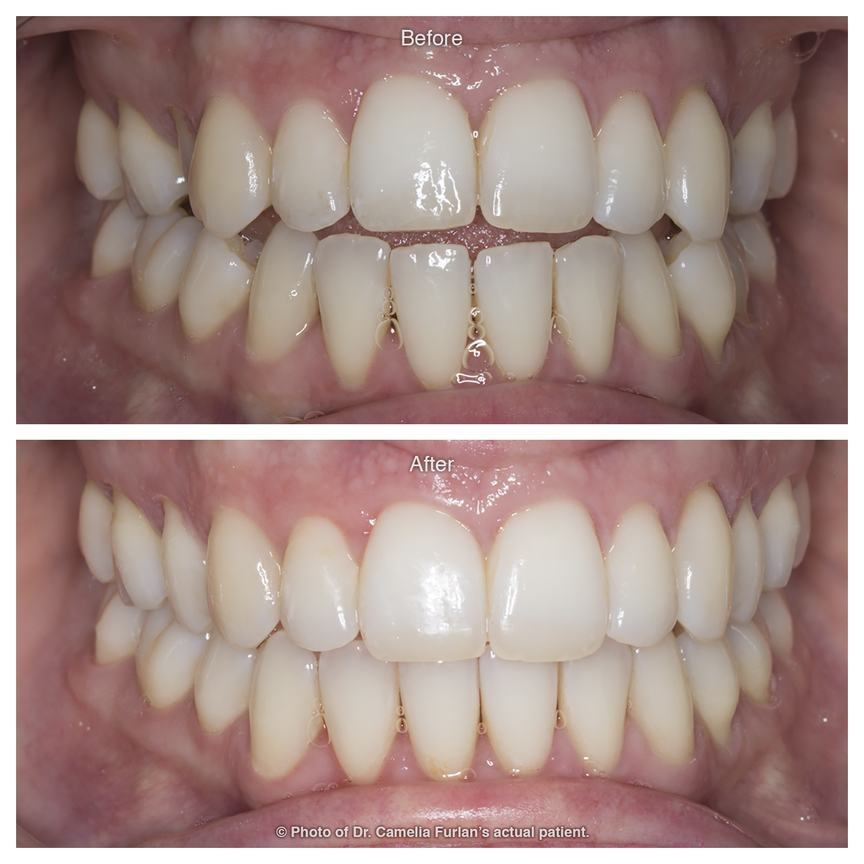 Fixing bite alignment with orthodontic treatment
