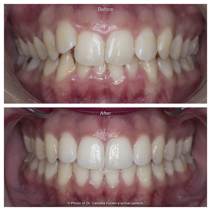 Misaligned Teeth Fixed With Orthodontics