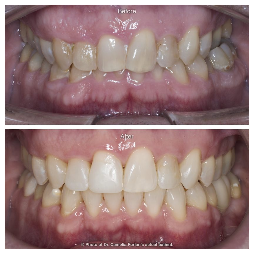 Stained and wonky teeth smile makeover