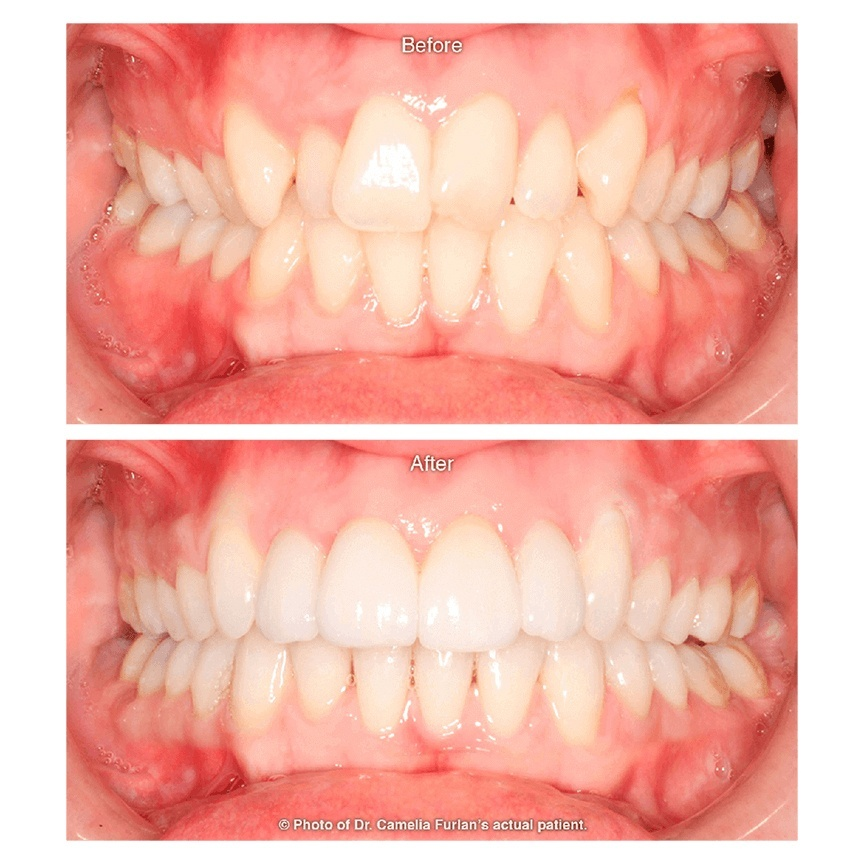 Teeth Straightened With Braces Orthodontics