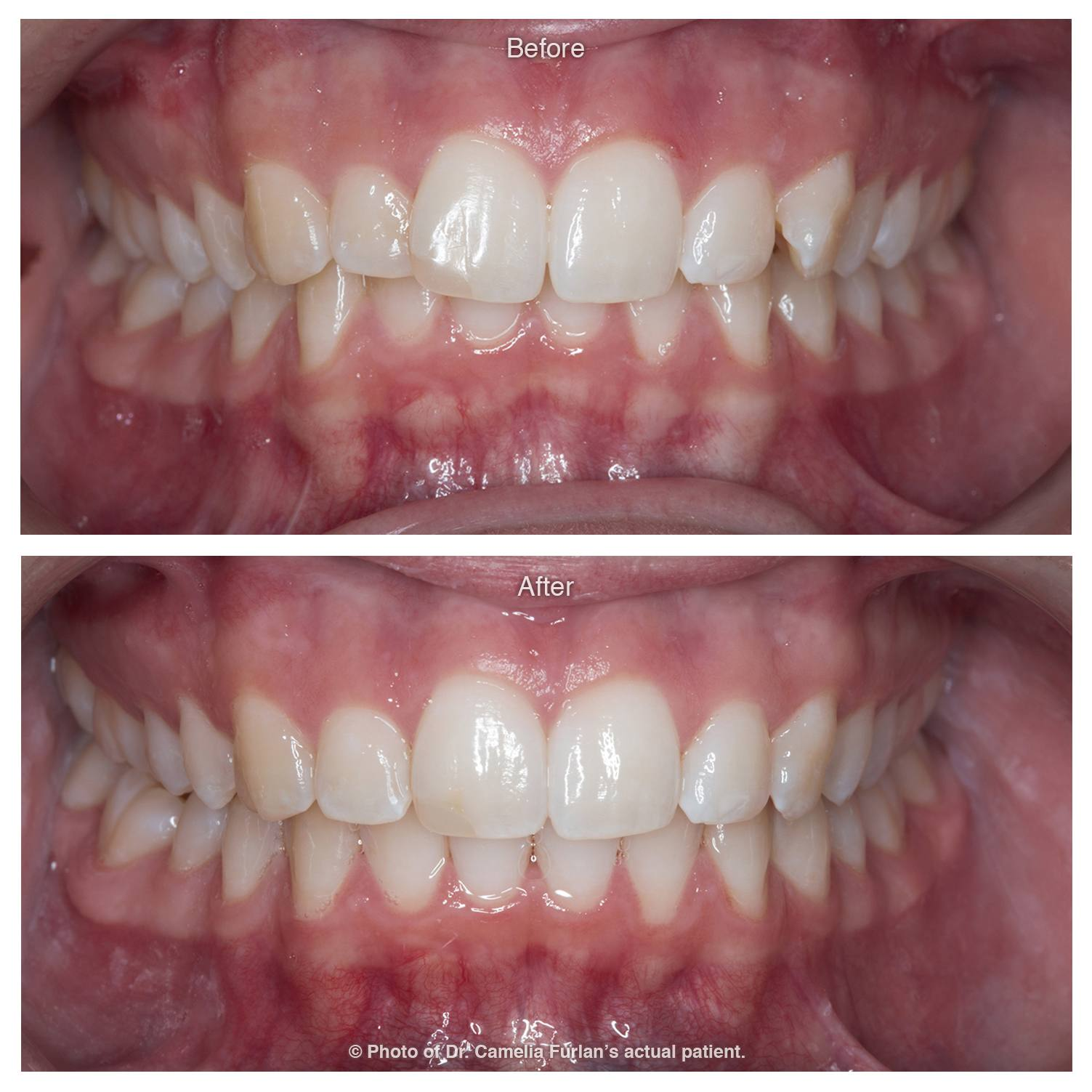 Invisalign Case Clear Braces 08