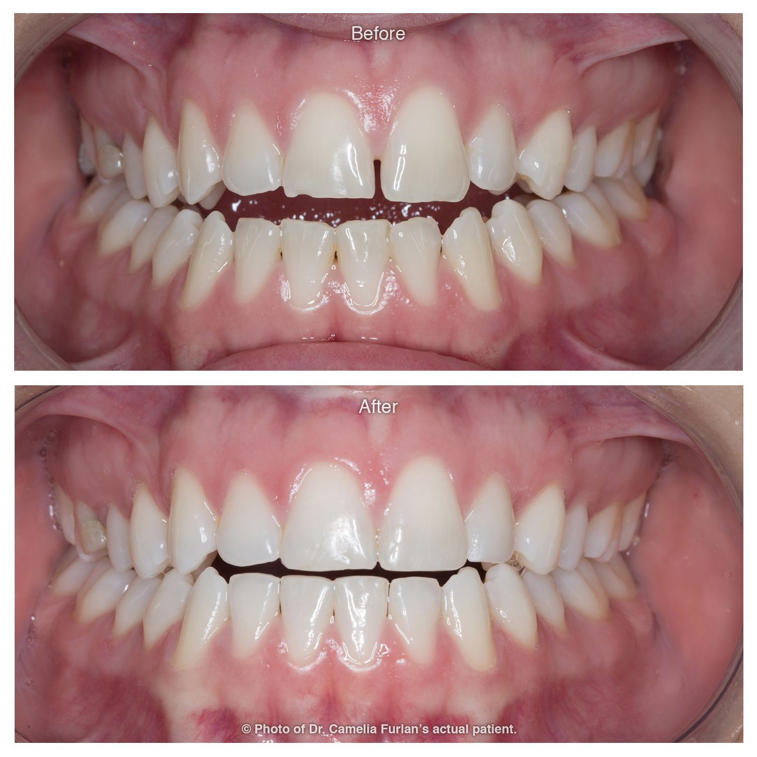 Invisalign Case Clear Braces 07