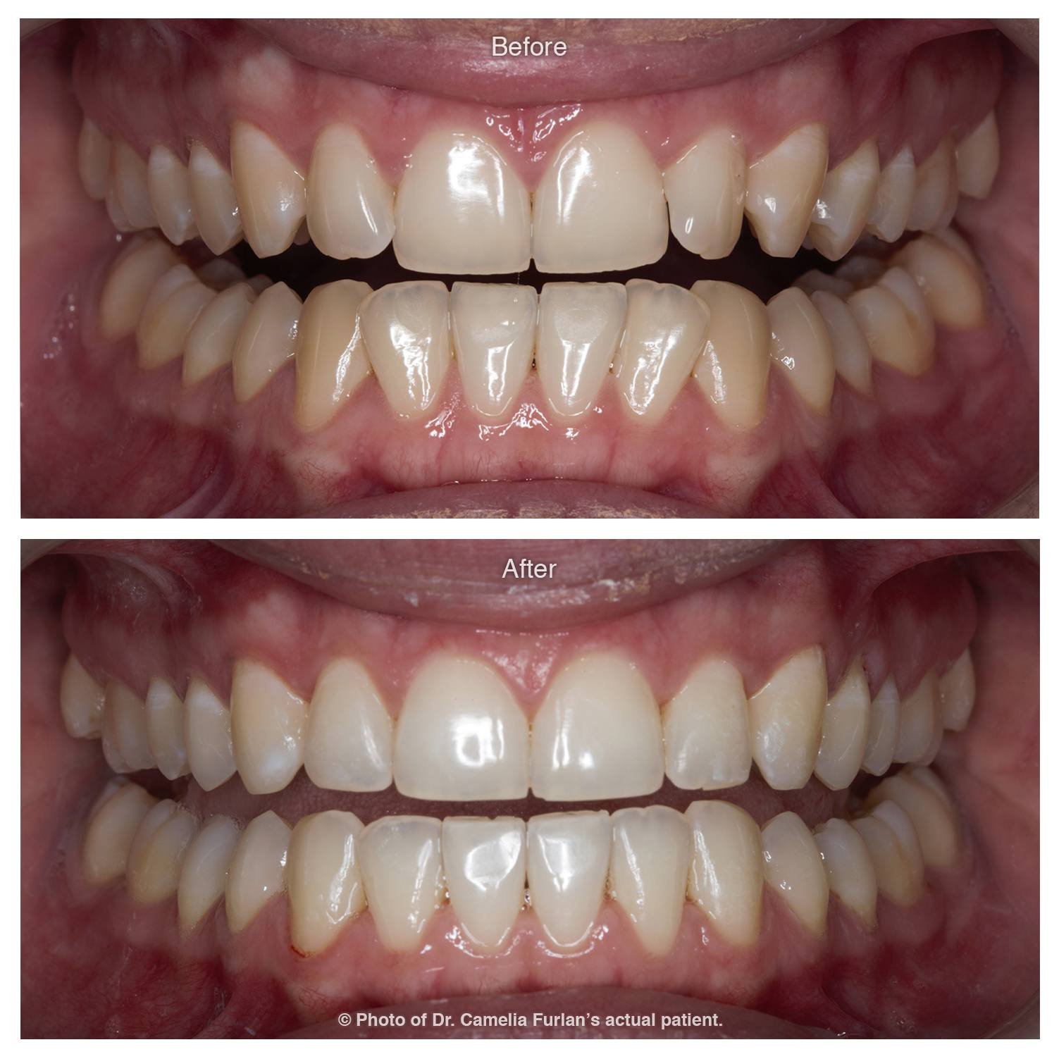 Invisalign Case Clear Braces 02