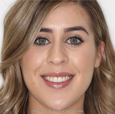 lady with a great smile makeover near Perth WA