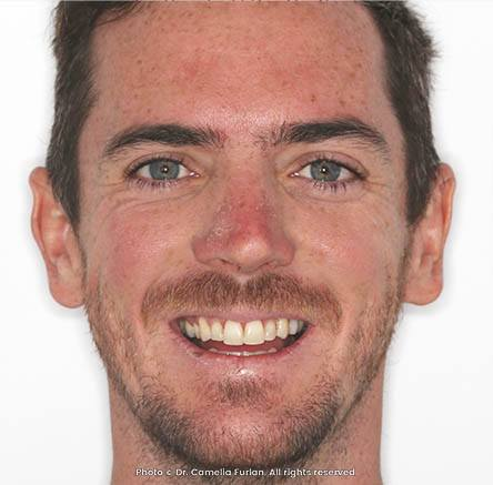 male who had a smile makeover at Dentique Dental Spa