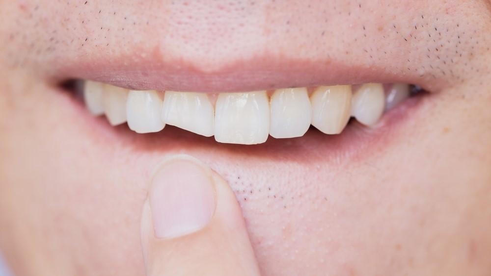 Dental Trauma to adult teeth